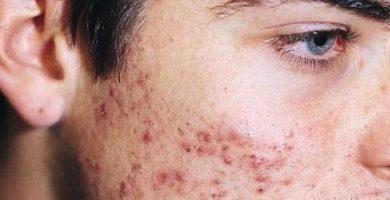 Acne-tratamientos-destacada